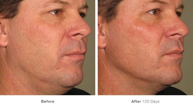 ultherapy skin procedure for men
