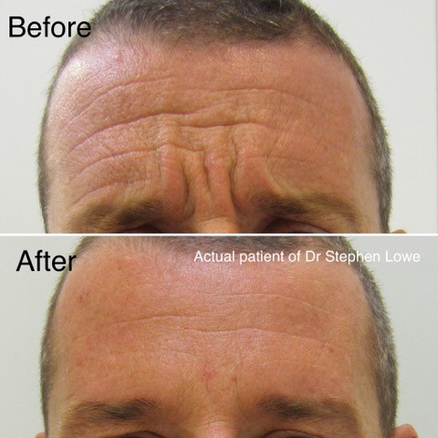 Botox skin repair for men