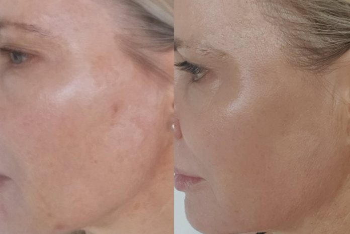 Beauty review: Diary of my Pearl Fractional Laser procedure